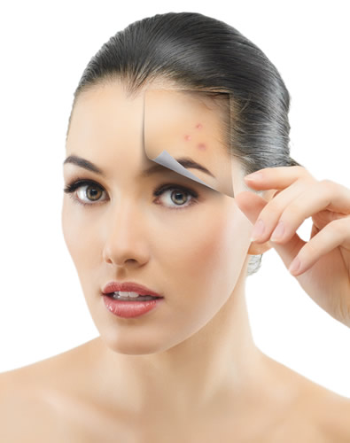 Acne Treatment Las Vegas